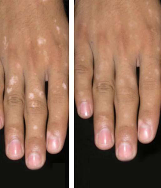Best Vitiligo Clinic In Delhi Vitiligo Treatment Centers In India Melanosite
